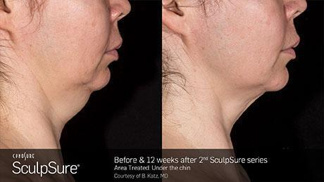 sculpsure-body-contouring-before-after