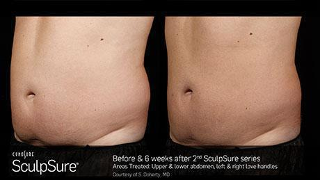 sculpsure-body-contouring-before-after10