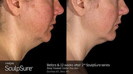 sculpsure-body-contouring-before-after2