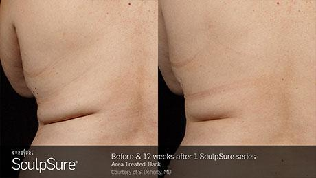 sculpsure-body-contouring-before-after3