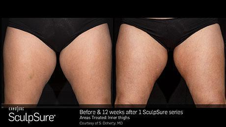 sculpsure-body-contouring-before-after5