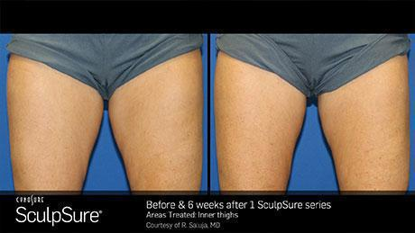 sculpsure-body-contouring-before-after6