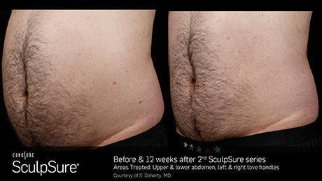 sculpsure-body-contouring-before-after7