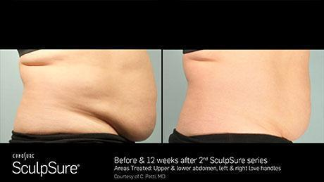 sculpsure-body-contouring-before-after8