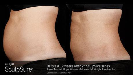 sculpsure-body-contouring-before-after9